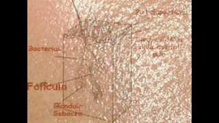 Como se forman las espinillas - Que es el acne - Como acabar con tu acne thumbnail