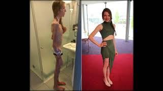 Юлия Липницкая заговорила о борьбе с анорексией и отношениях с родным отцом