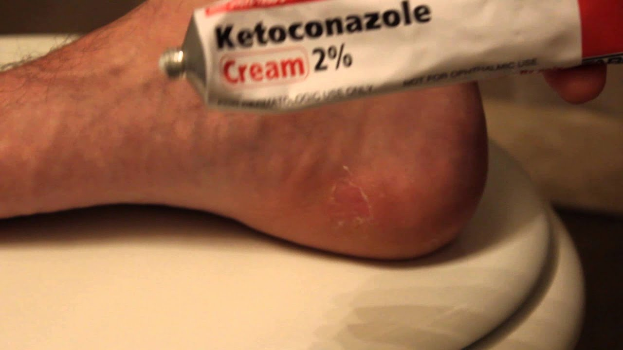 prescription athletes foot cream
