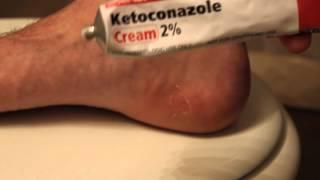 Prescription Foot Fungus Cream Review