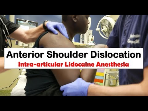 Anterior Shoulder Dislocation and Anesthesia with Intra-articular Lidocaine