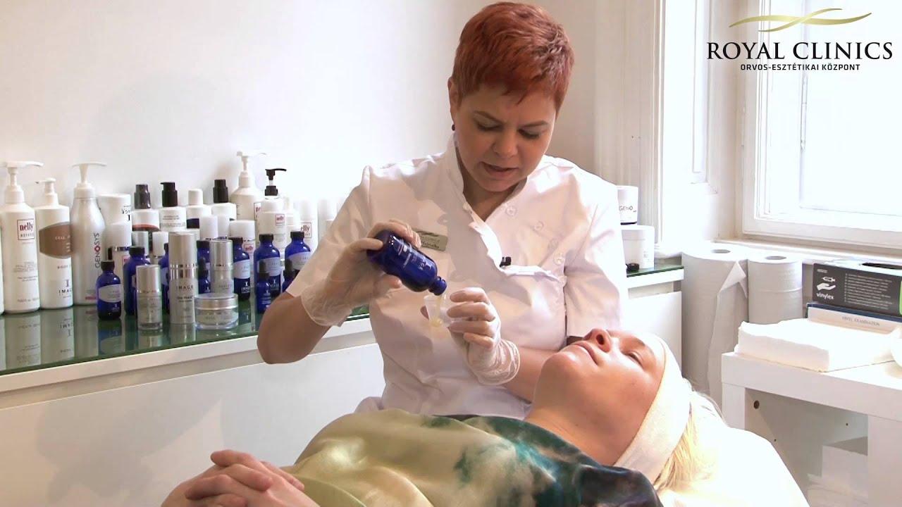 Boka-sprain kezelés kenőcs. PharmaOnline - Izomsérülések – mit ajánlhat a gyógyszerész?