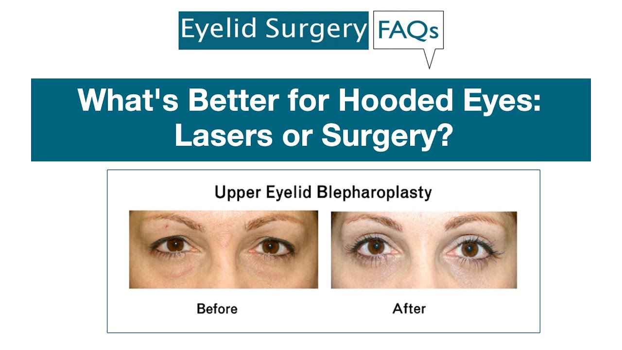 Fraxel Laser What's Better For Hooded Eyes: Lasers Or Surgery? - Youtube