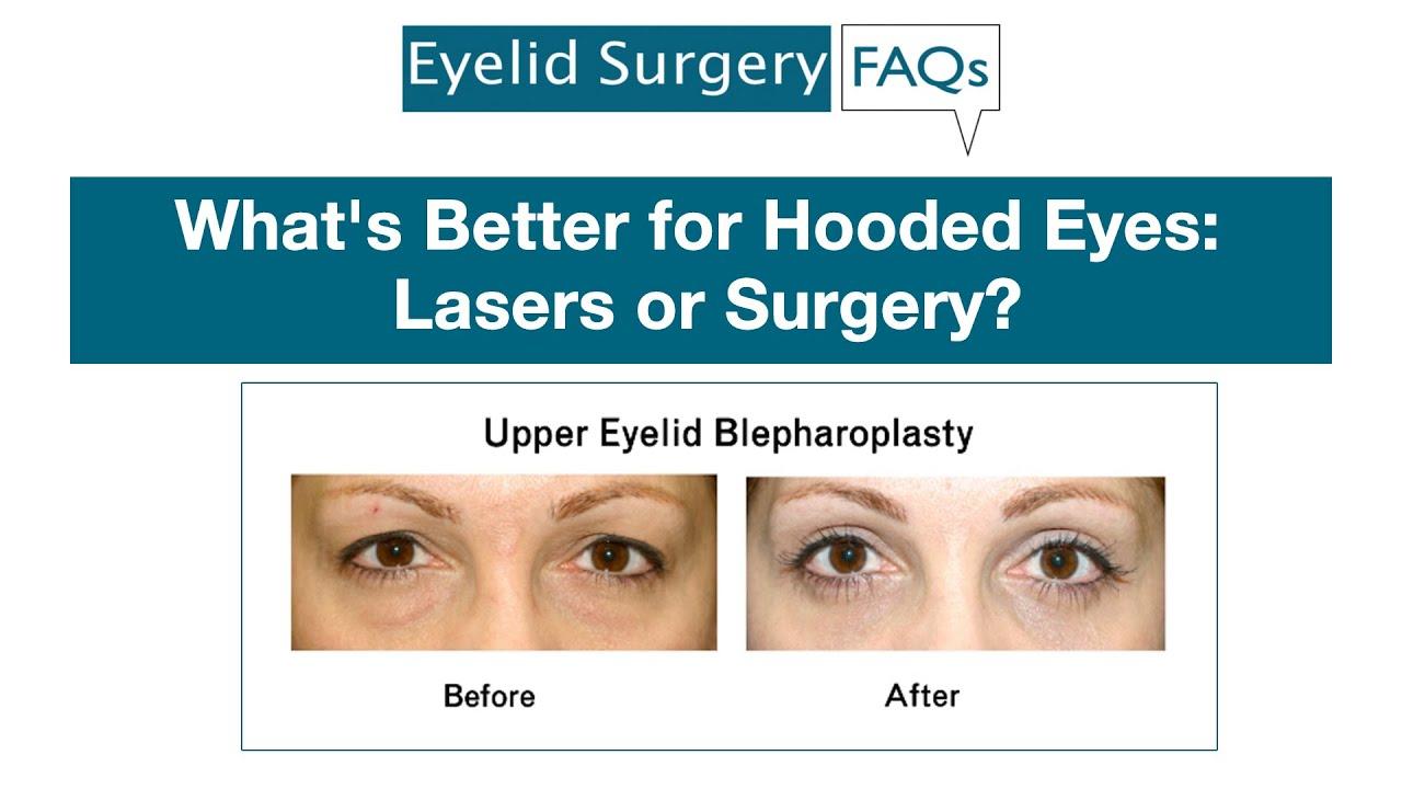 FAQ Videos – Upper Eyelid Surgery