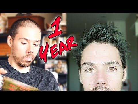 1 Year Male Pattern Baldness Reversal: How I Did It