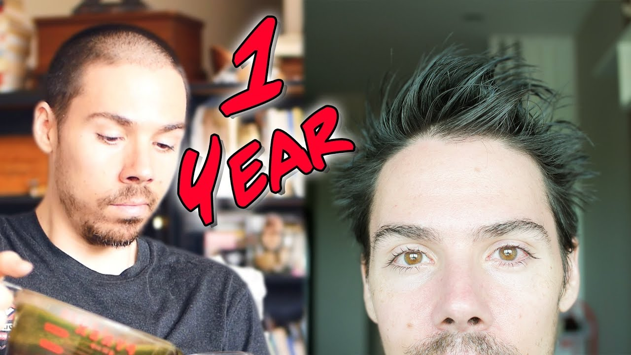 Hair loss nofap my 8