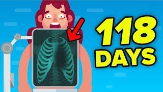 Surviving 118 Days Without Heart - True Story