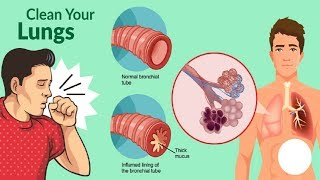 How To Get Rid Of Phlegm And Mucus In Chest & Throat (Instant Relief)
