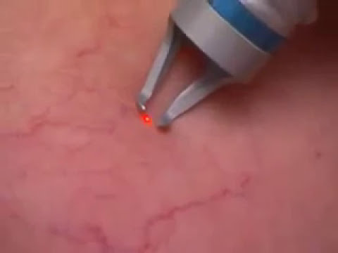 Tipuri de vene varicoase recenzii ,tratați varicele în perm