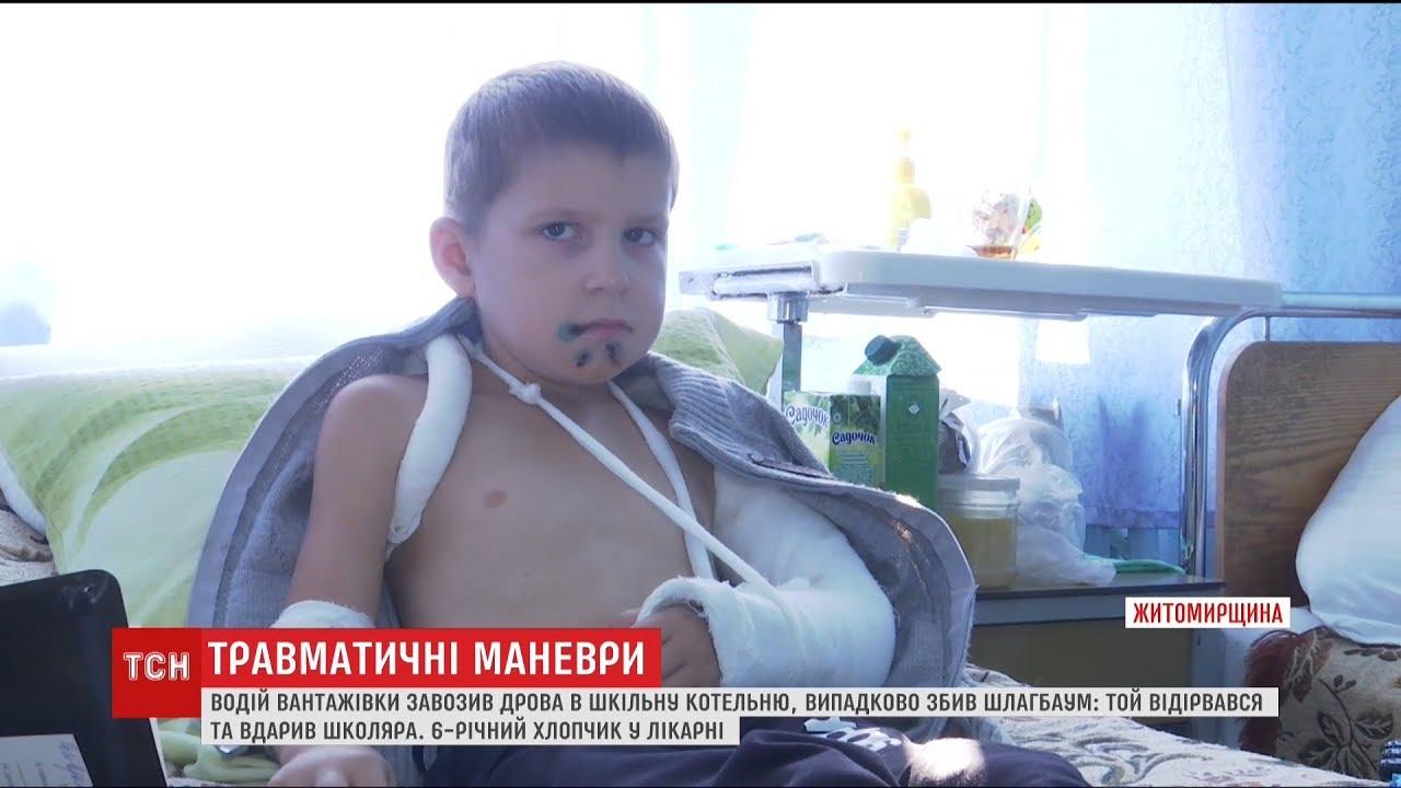 Шлагбаум травмировал первоклассника на школьном дворе