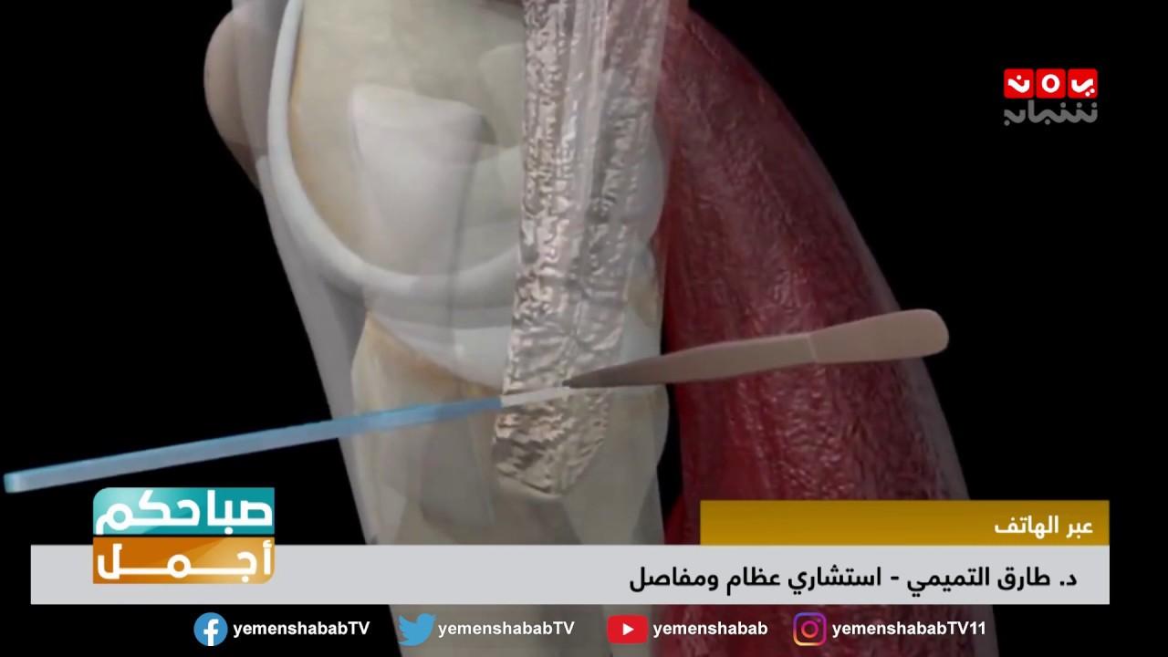 تأكل غضروف الركبة الأعراض الاسباب وطرق العلاج الممكنه صباحكم اجمل Youtube