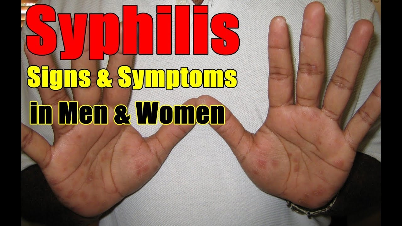 The main symptoms of syphilis in women