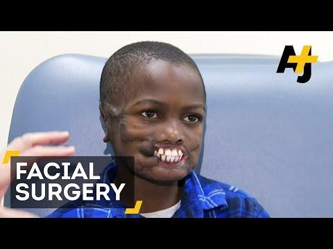 Disfigured Boy Gets Rare Surgery