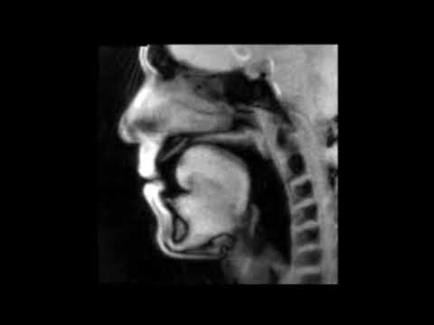 Seeing the Unseen: Trombone Playing Through the Eye of a MRI Scanner