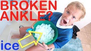 Broken Ankle AGAIN? Super Cold Ice Bath!