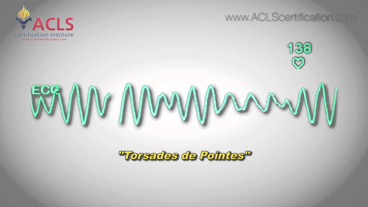 torsades pointes acls certification institute
