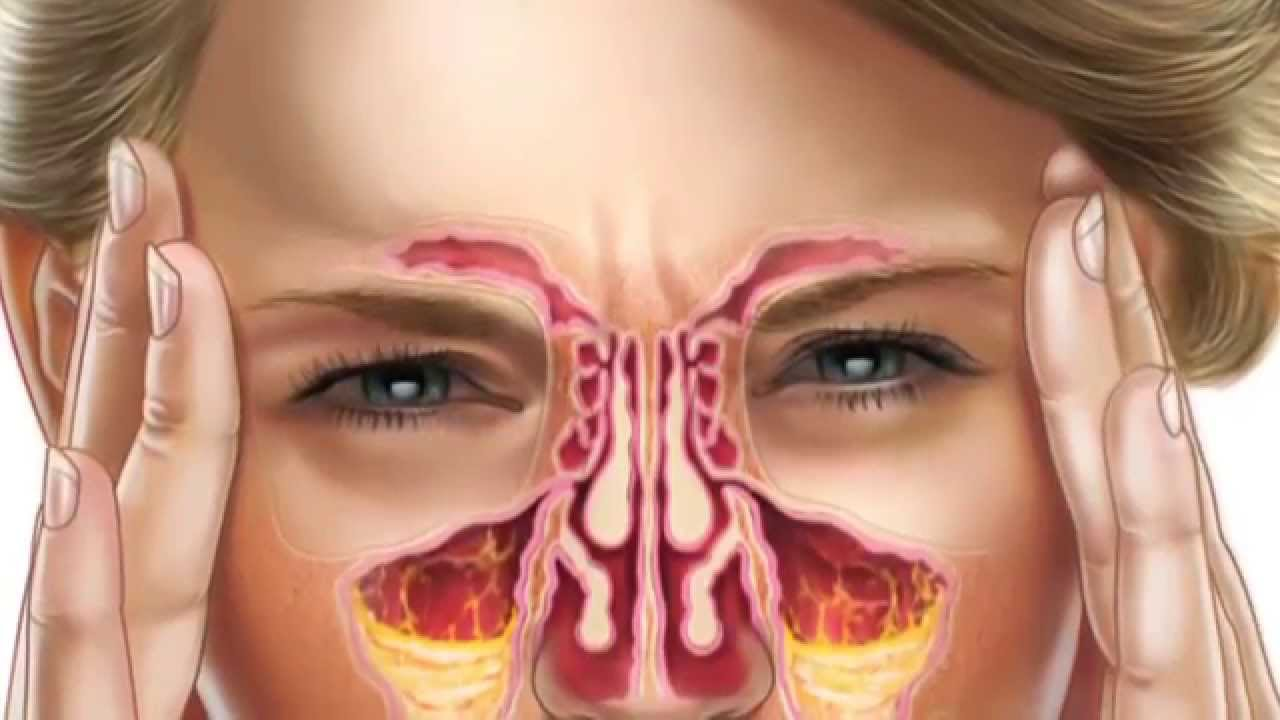 Diagram Of The Human Nose And Throat Wiring Dimmer Switch 3 Way How To Clear Your Sinuses With Flo Sinus Care Wash - Youtube