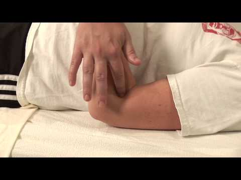 Acupressure for Hives