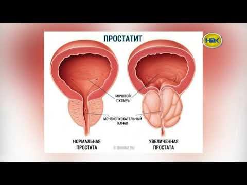 ЛДЦ «Медицина» диагностика  и лечение простатита   – выпуск №17 2017 г