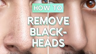 No Bullsh*t Blackhead Removal - How To Remove Blackheads From Face / Nose ✖ James Welsh