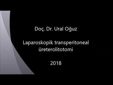 Laparoskopik transperitoneal üreterolitotomi