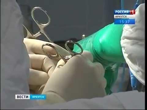 """Новый метод оперирования пищевода и желудка применили в Иркутске, """"Вести-Иркутск"""""""