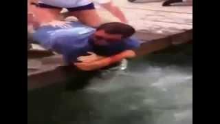 Balık adamın kolunu yuttu