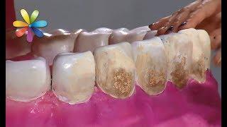видео Отбеливание зубов в домашних условиях
