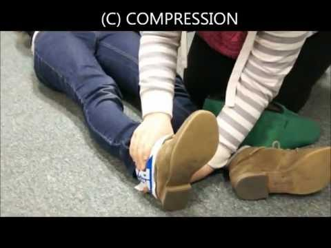 How To: treat a sprain/strain. DofE Young People Demonstrate!