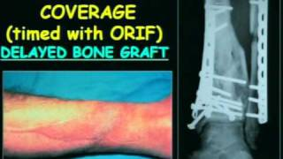 2010 Trauma Summit in Seattle: Salvaging Severe Pilon Fractures