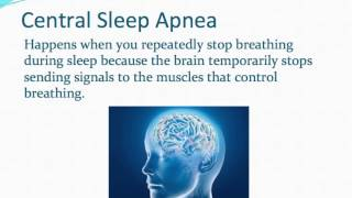 Types of Sleep Apnea: What Are The Major Types of Sleep Apnea?