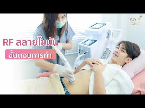 ขั้นตอนการทำ RF สลายไขมัน ยกกระชับสัดส่วน ตัวช่วยหุ่นเป๊ะ!!  ที่ SOY Clinic