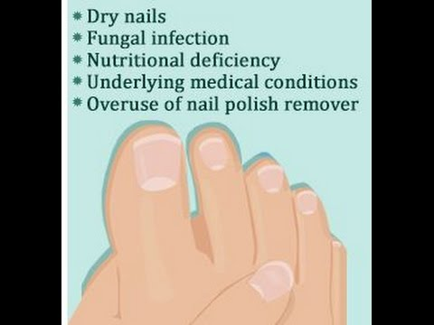 Brittle Toenail Causes