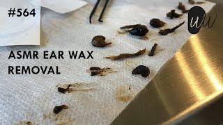 564 - ASMR Ear Wax Removal