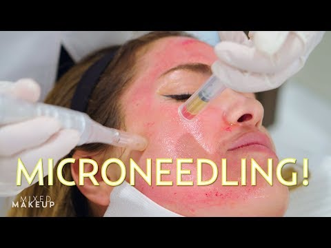 Vampire Facial? We tried Microneedling with PRP! | The SASS with Susan and Sharzad