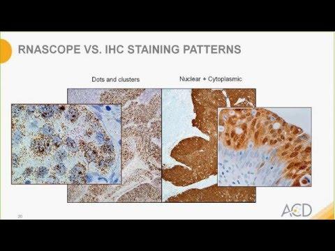Become an RNAscope Expert - RNAscope® Data Interpretation Webinar