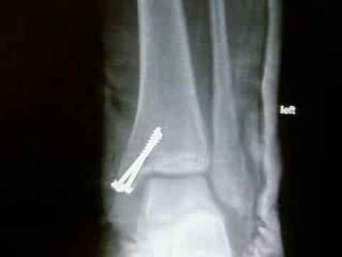 my broken ankle - x-ray - YouTube