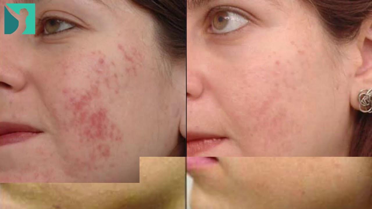 acne severo antes y despues de adelgazar