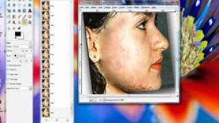 Gimp 2.6 Fix facial blemishes/ beauty fix tutorial Thumbnail