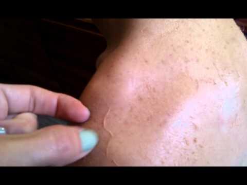 Soleil : les conseils futés pour bronzer en toute sécurité !  Météocity