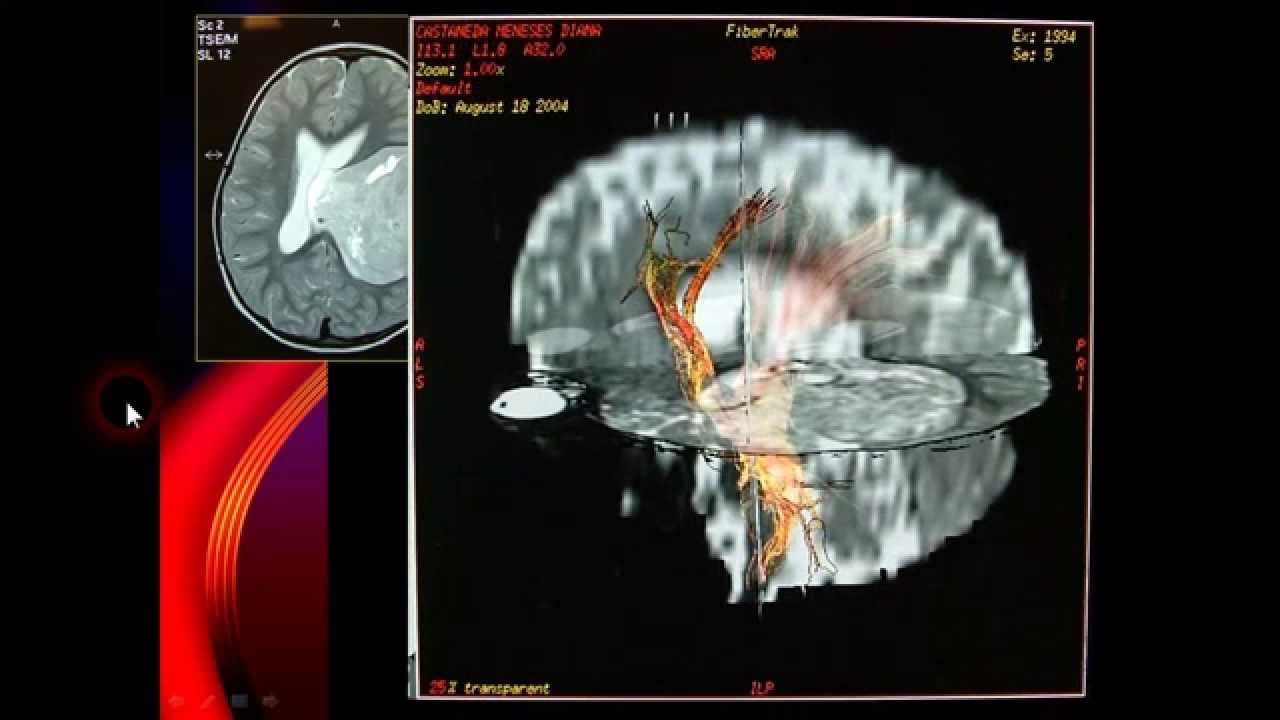 decompressive craniectomy review youtube