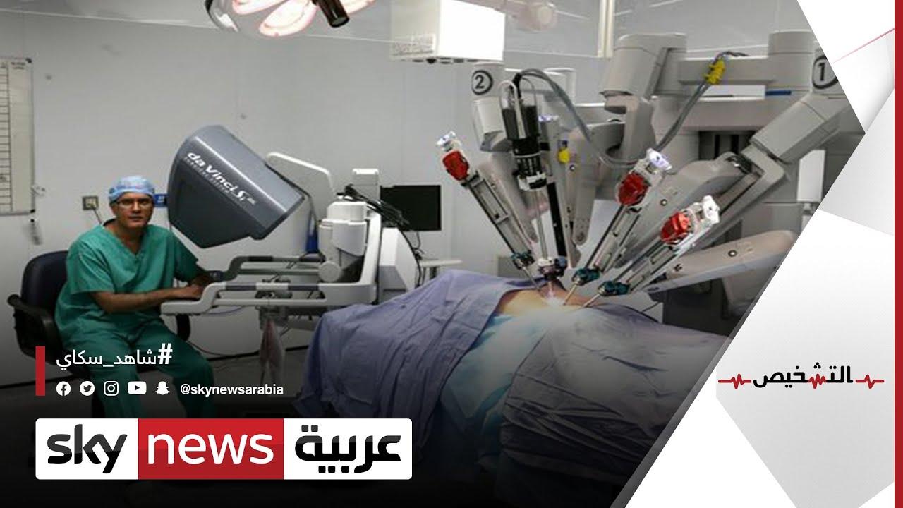استئصال الأورام بالجراحة الروبوتية |#التشخيص  - نشر قبل 2 ساعة