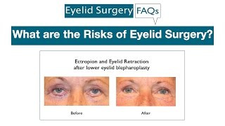 What are the Risks of Eyelid Surgery?