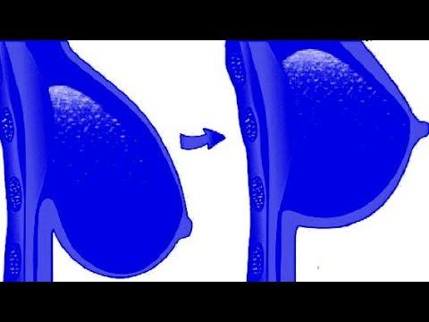 Cara Memijat Payudara Agar Payudara Kencang Tambah Montok Sehat Youtube