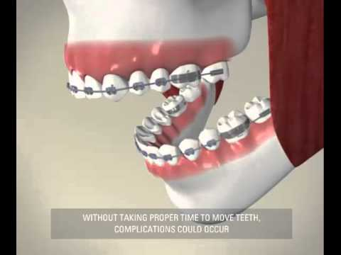 How Teeth Move With Braces - Miskin Ajax Dental