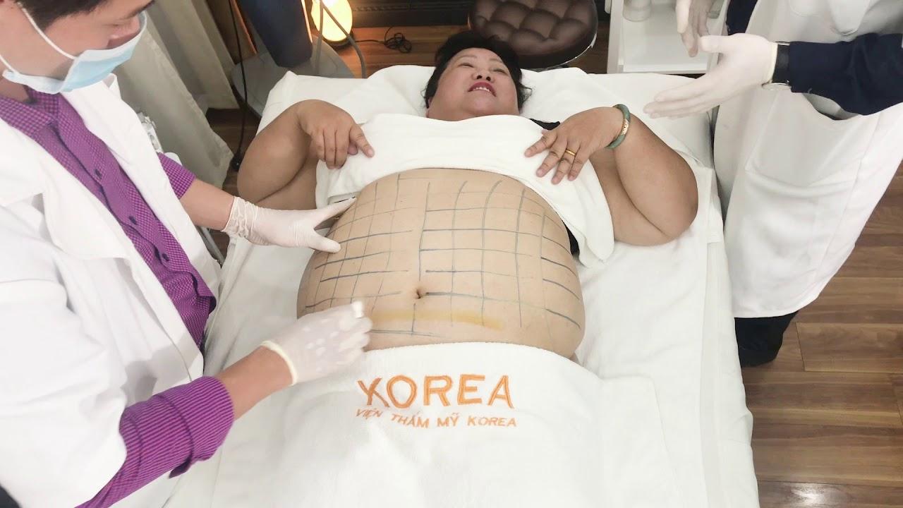 """VTM Korea –  Ca hủy mỡ của cô khách hàng cân nặng hơn 1 TẠ """"HIẾM CÓ KHÓ TÌM"""" – 0911859999"""