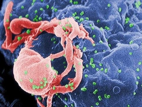 New, Aggressive HIV Strain Develops Into AIDS Faster