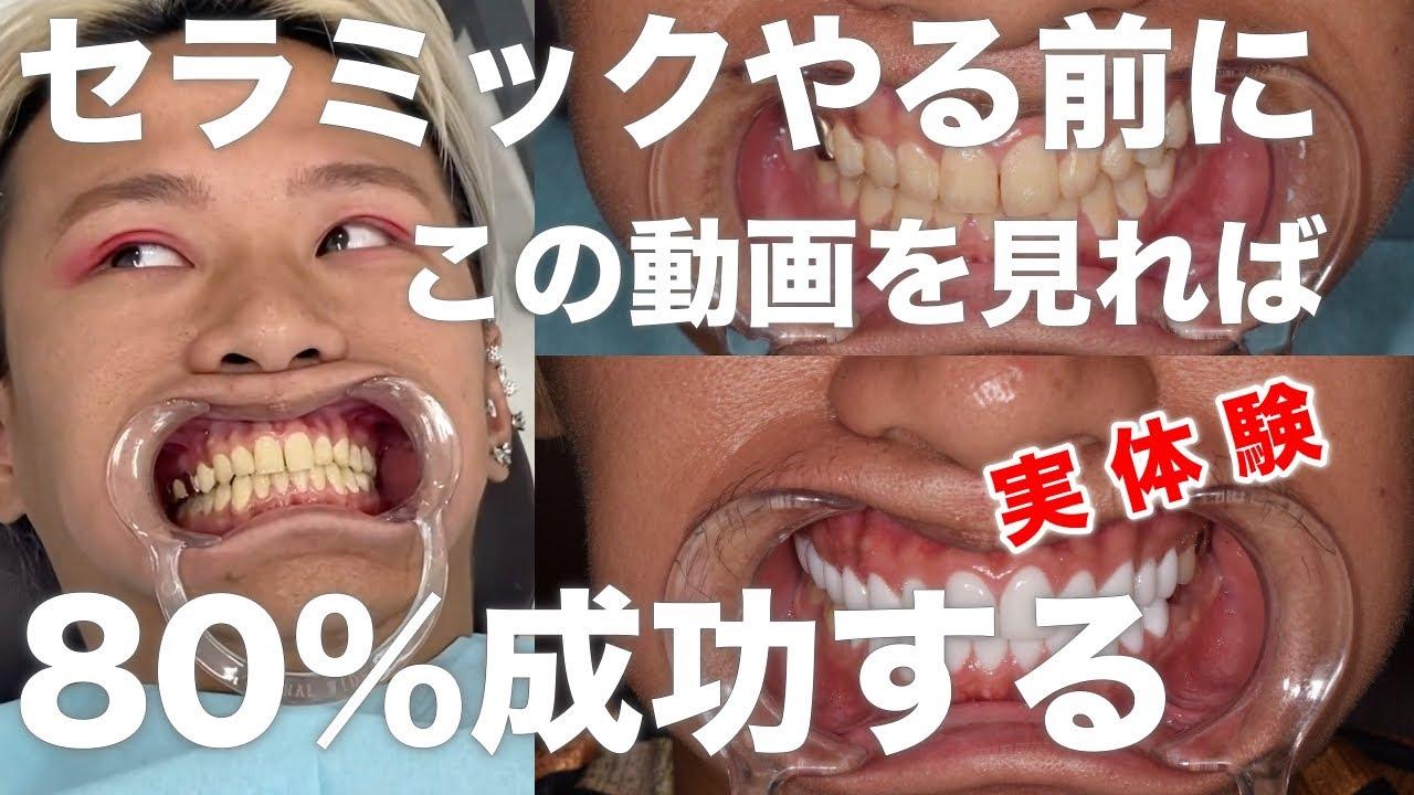 歯 ジルコニア