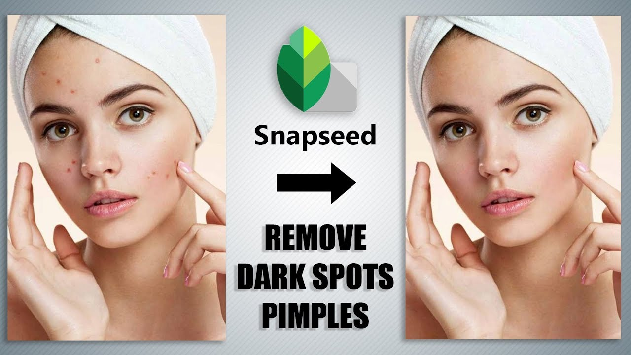 How To Remove Dark Spots Pimples Acne Using Snapseed Youtube