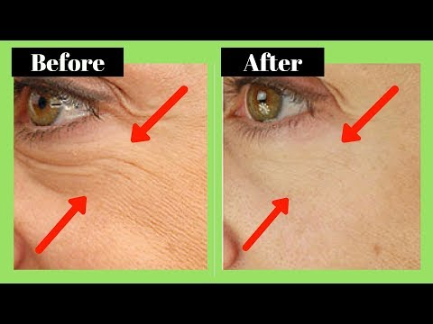 How to Remove Wrinkles Under the Eyes Naturally (2018)
